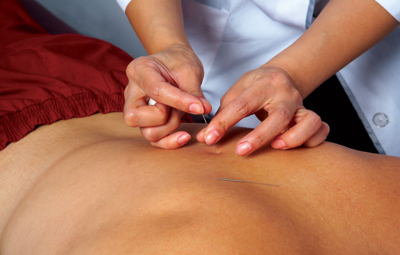 Acupuncture in Edwardsville, IL